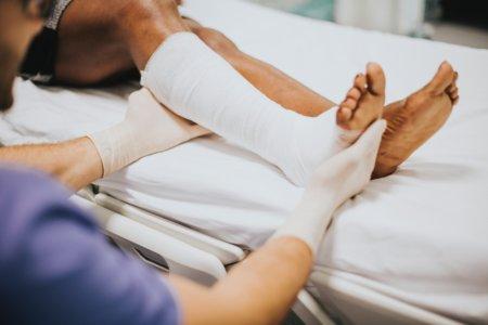 Brækket ben i gips