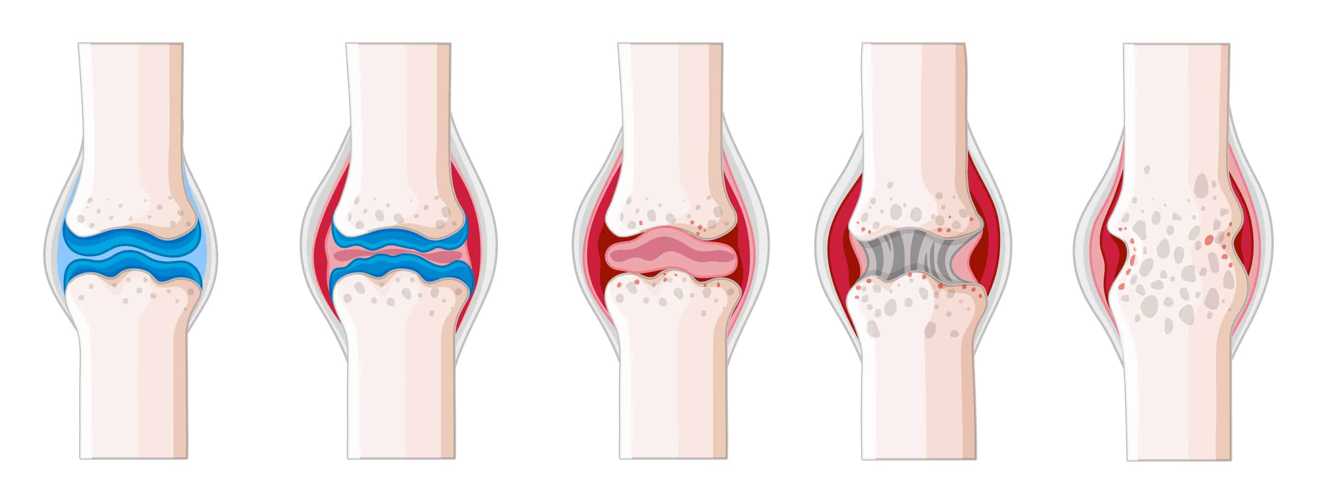 Arthritis in human body illustration