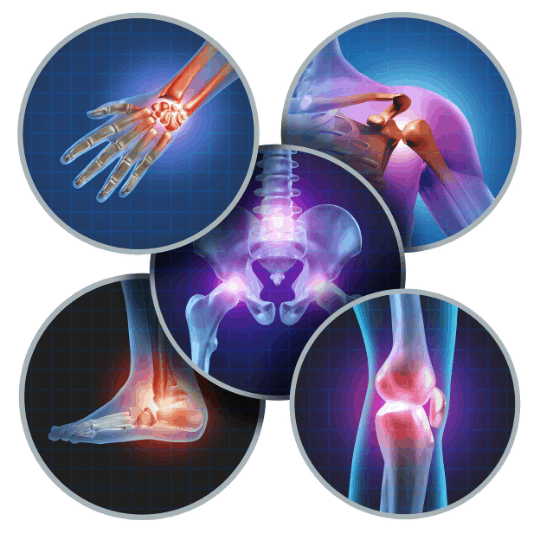 the-real-cbd-blog-cbd-and-inflammation